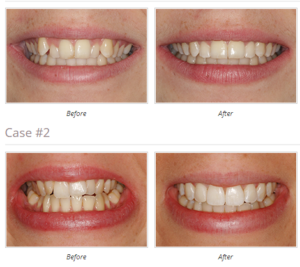 clear smile braces mill hill